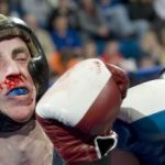 krwotok z nosa